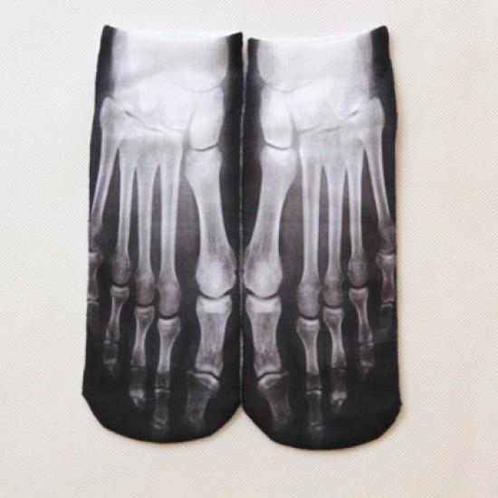 Röntgen - csontváz boka zokni